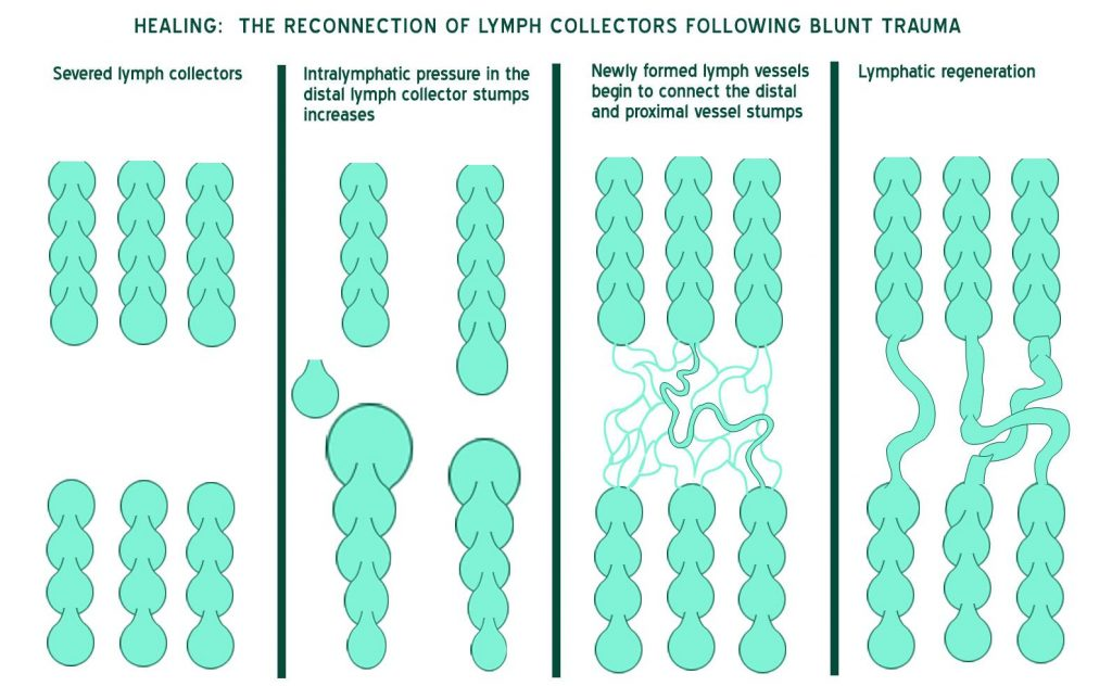 Healing - reconnection of lymph connectors